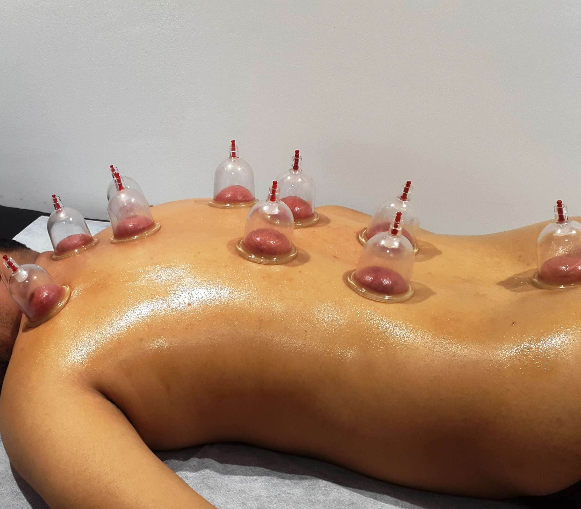 Top Cupping Therapy Centres in Banaswadi - Best Hijama