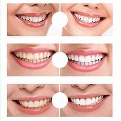 Buy Shoppy Shop Pro Teeth Whitening Pen Tooth Gel Bleach Dental
