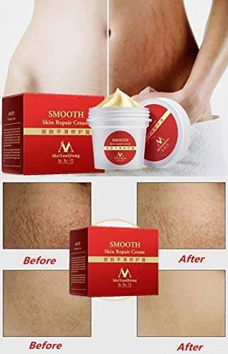 Buy World Beauty S Massage Stretch Marks Repairing Cream Scar